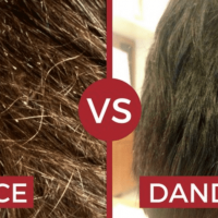 How to Know If You Have Lice or Dandruff