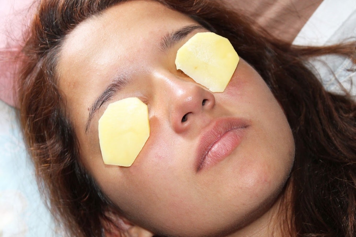 potato slices on eyes to get rid of tired eyes