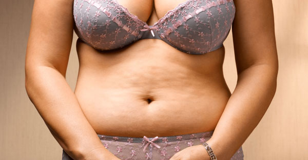 How to Get Rid of Cellulite on Stomach Fast